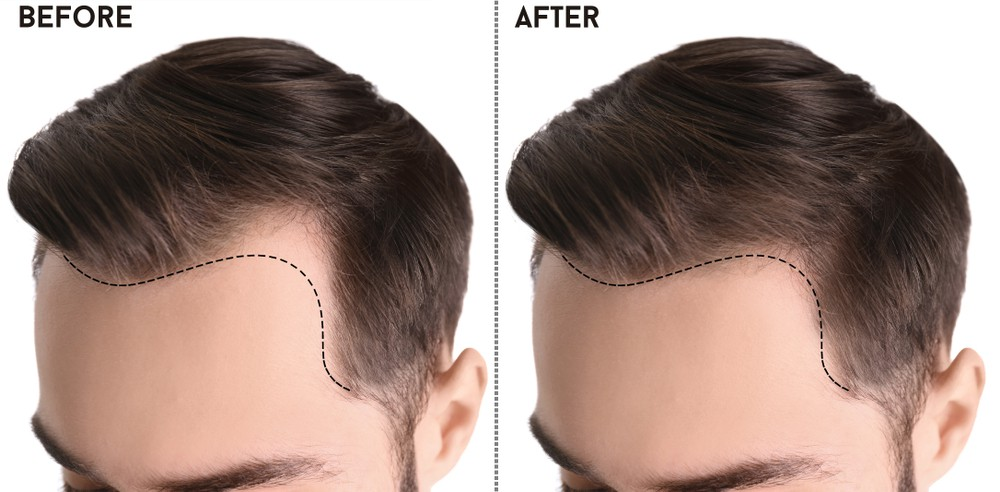 Surgical Treatment for Hair Transplant - The Rover Post